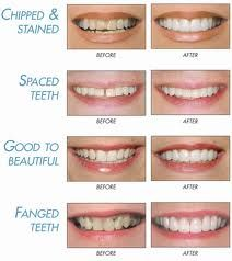 Lumineers Before And After Improving Your Smile With