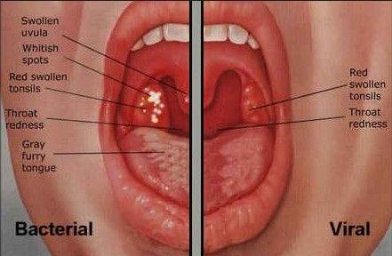 Peroxide strep throat