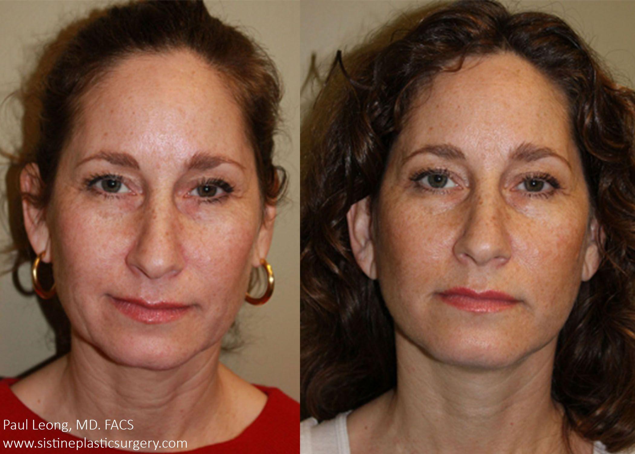 Pittsburgh facial plastic surgery