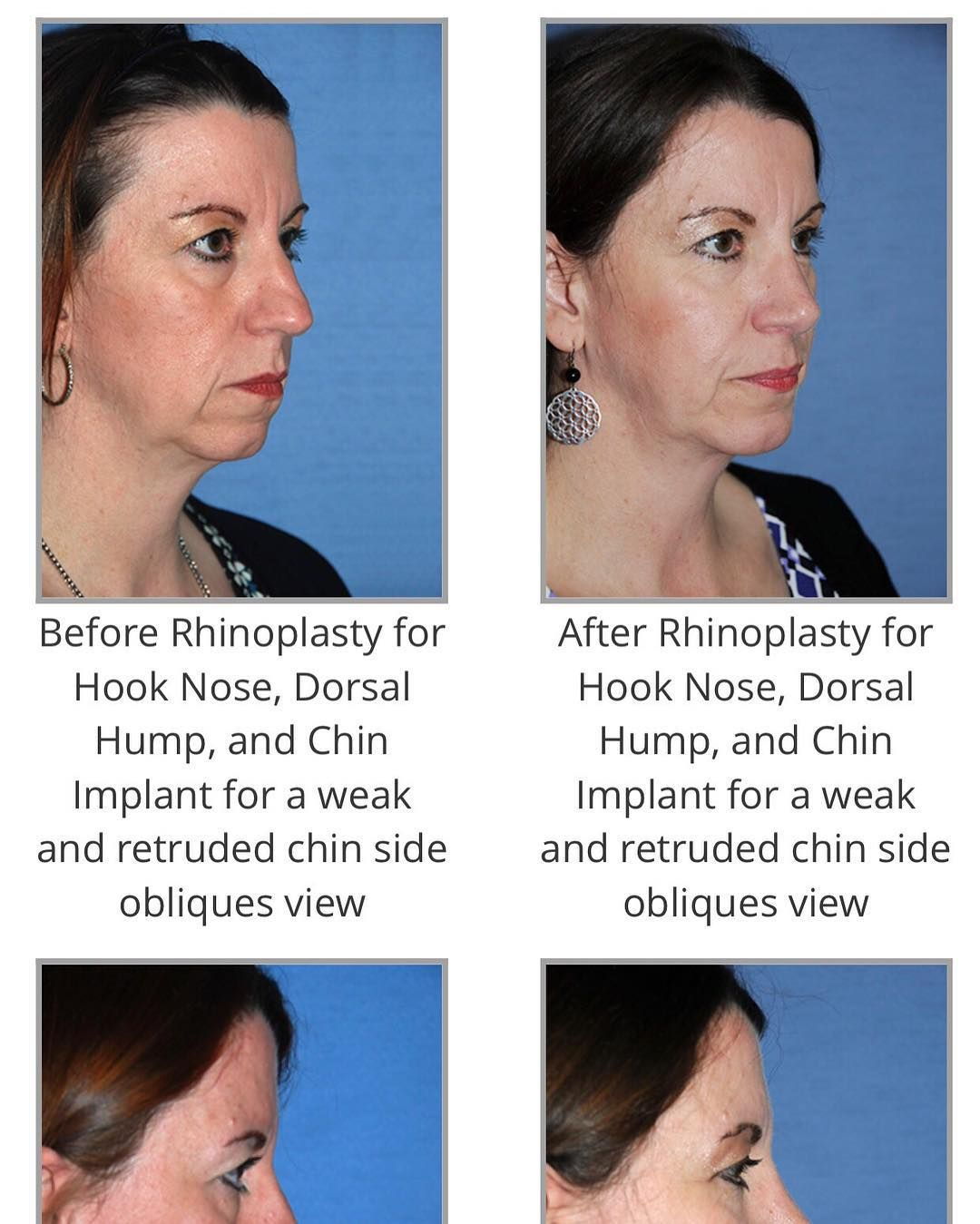 Plastic Facial Surgery Before and After Photo Facial Surgery ...
