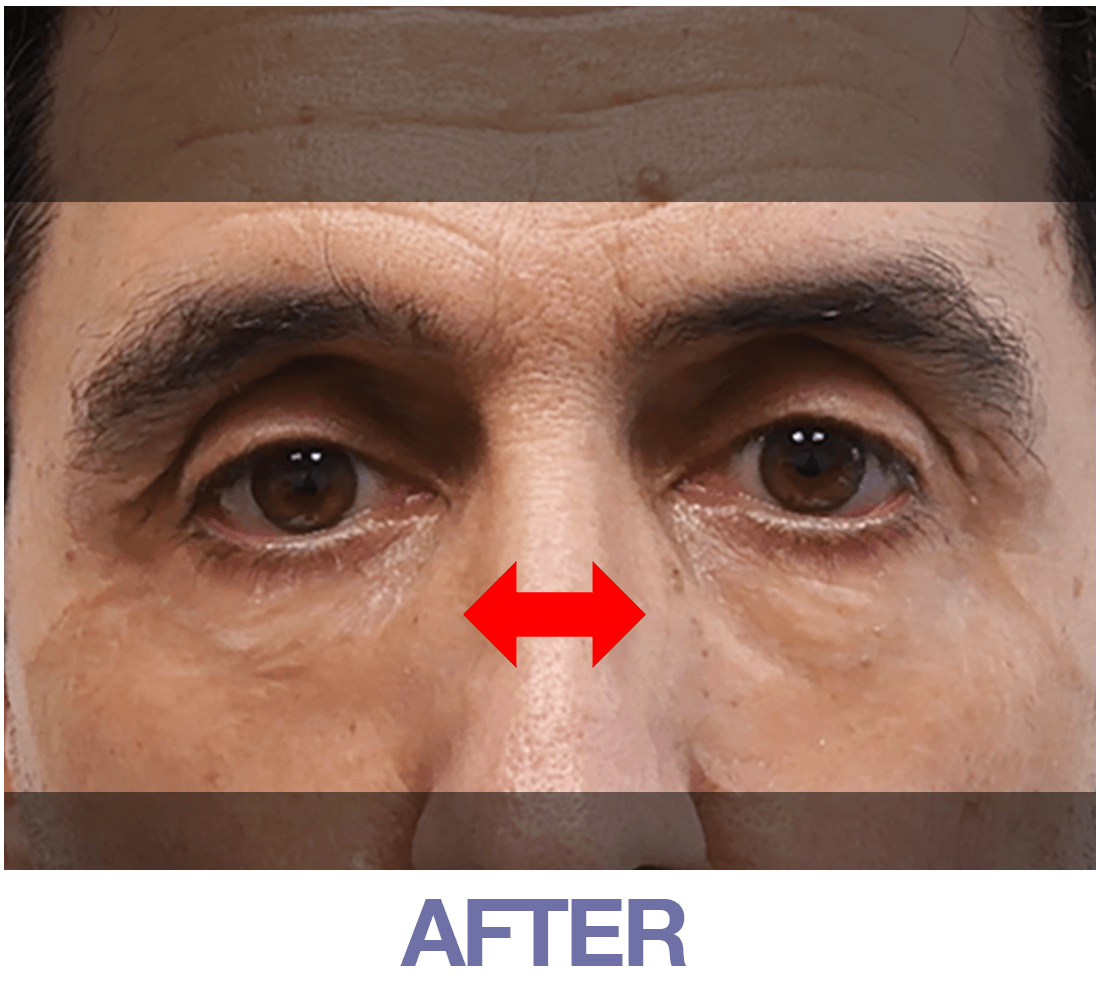 Home | Official Store of Plexaderm Skincare - Instantly Remove