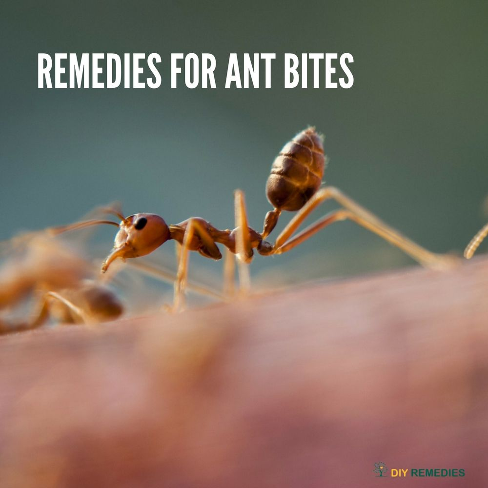 Natural Treatments And Remedies For Fire Ant Bites Ant Bites Fire Ant Bites Fire Ants