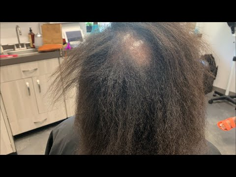How To Fix Damaged Hair Bald Spot In Middle Plus More Youtube Bald Hair Damaged Hair Middle Hair