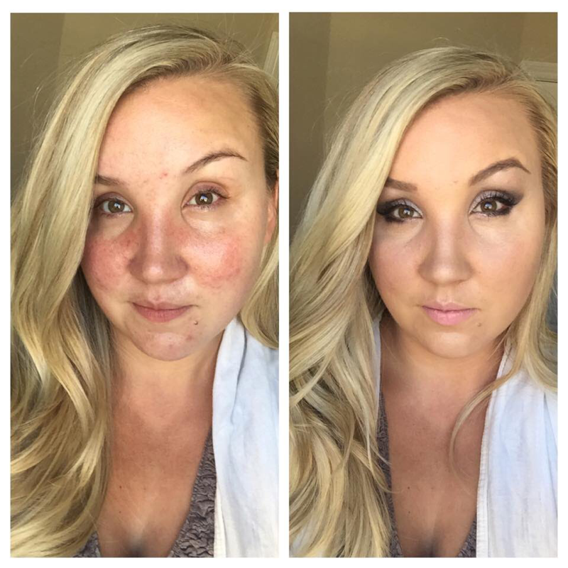 Photos/videos Rosacea makeup, Acne scar removal