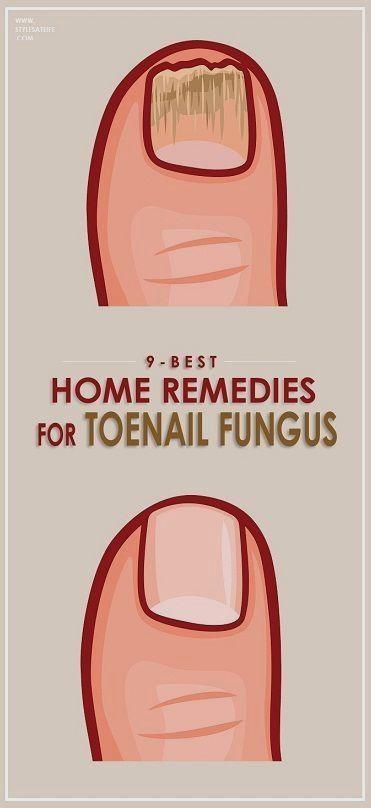 How to Get Rid of Toenail Fungus. #diy #natural remedies #ToenailFungusEssentialOils
