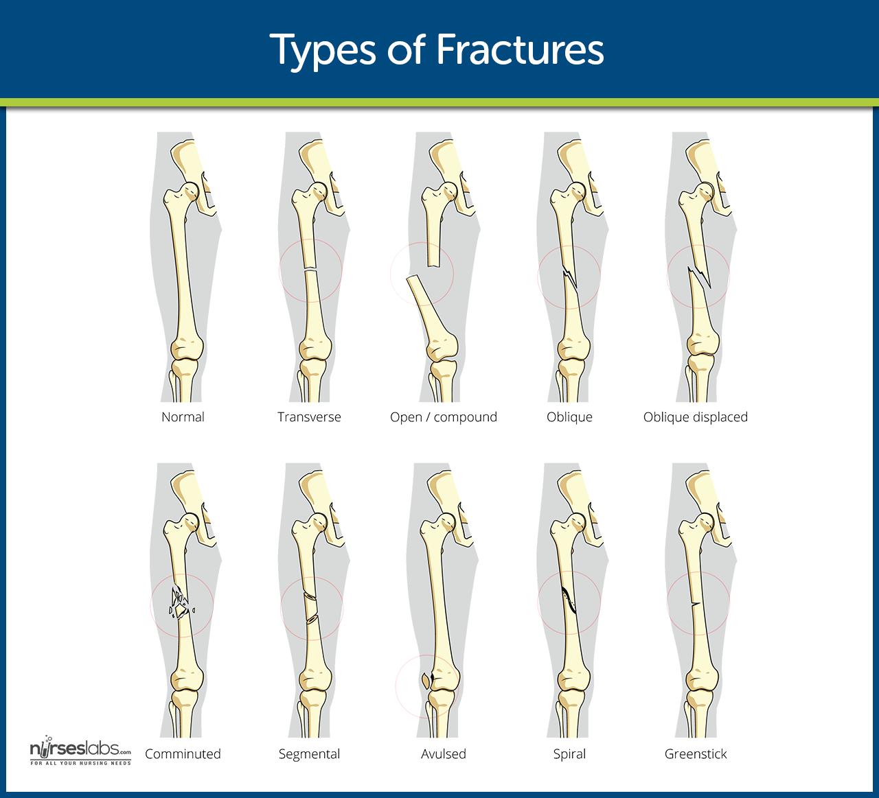 Pin By Leez Maed On E Kg Medical Etc Bone Fracture Nursing