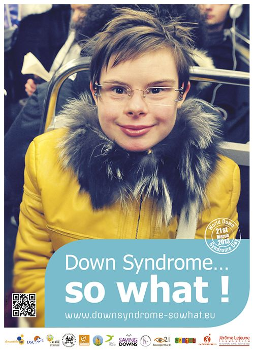Down syndrome ... so what!