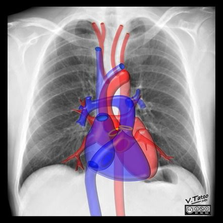 Cardiomediastinal anatomy on chest radiography | Radiology Case ...