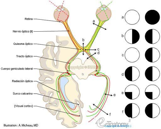 Nervio Óptico (II PAR) | Pares craneales | Pinterest | Nervio óptico ...
