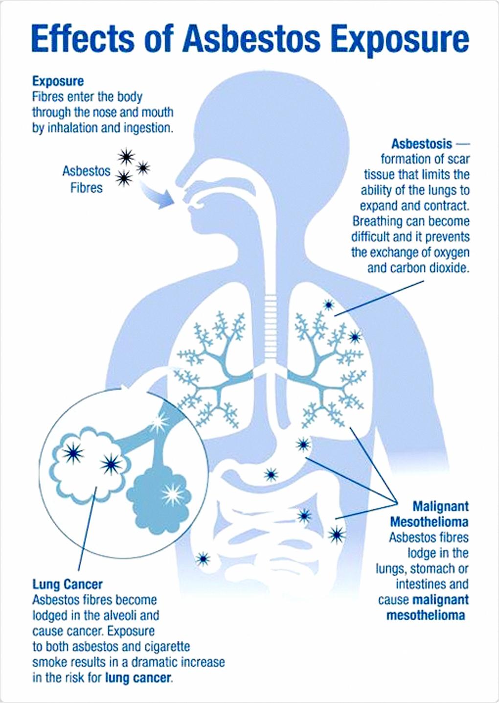 mesothelioma blog #Mesothelioma   Mesothelioma, Cancer ...