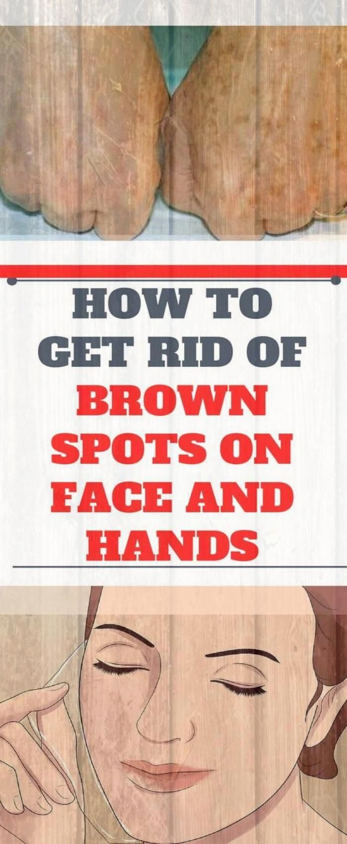 How To Get Rid Of Hands Brown Spots#health #fitness #spots #CanBrownSpotsBeRemoved #BestForBrownSpot...