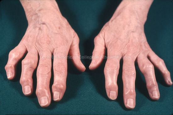 Oa Osteoerthritis Of Ip Interphalangeal Joint Produce Irreversibly Bony Growth In Distal Joint Heberden Nodes And Pr Osteoarthritis Joint Physiotherapy