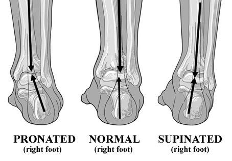 structural ankle foot alignment - Google Search