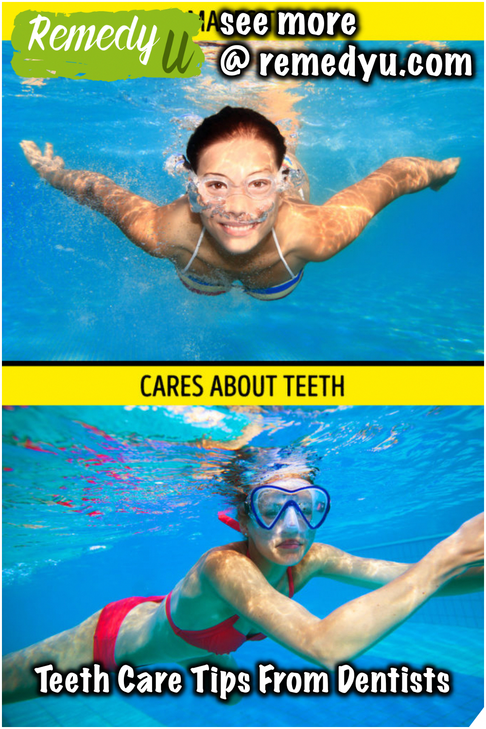 Teeth Care Tips From Dentists