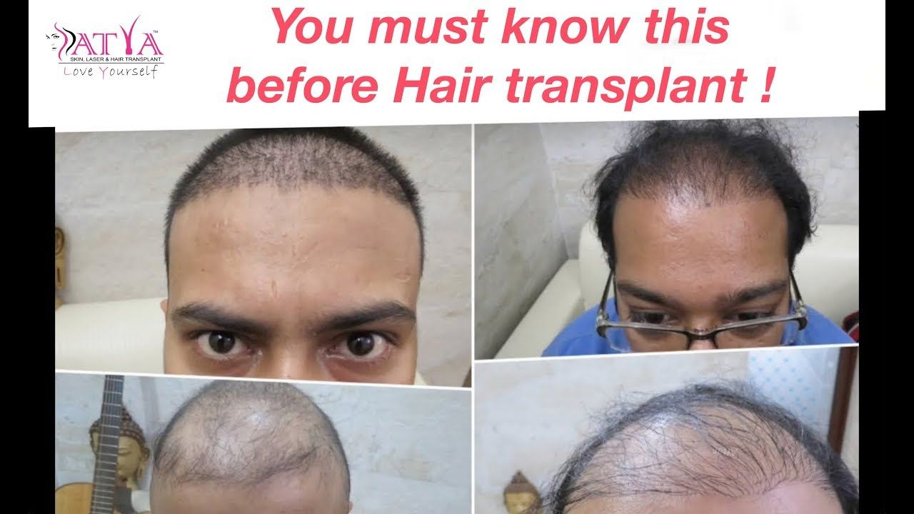 Side Effects of Hair Transplant Satya Hair Clinic Dr