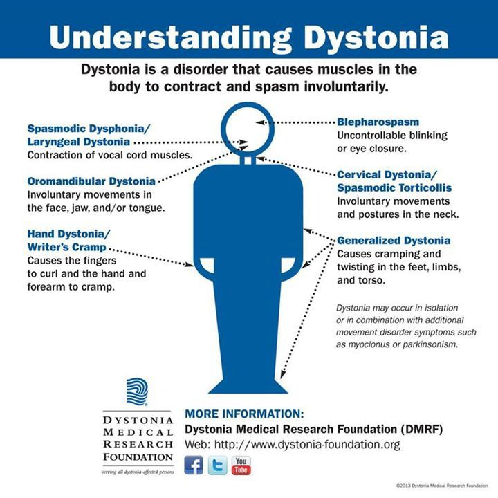 dystonia understanding this disease support the cause
