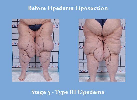 The Lipedema Liposuction Center | | Lipoedema/Lipedema - Fat