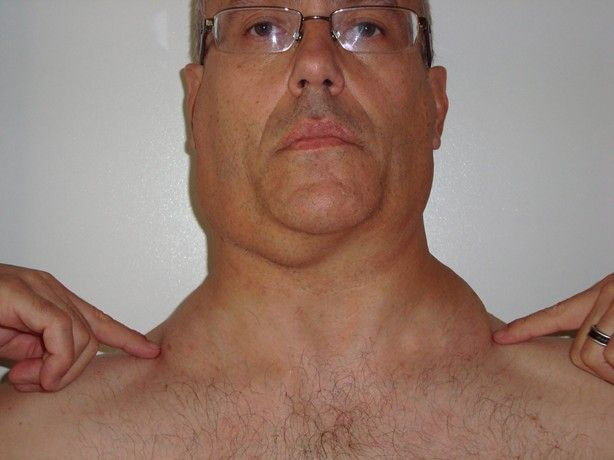 Lymph Nodes In Neck Wish These Were