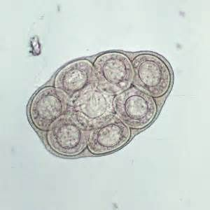 Tapeworm.. Dipylidium caninum (dogs&cats) eggs found in ...