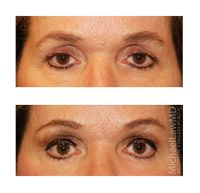 Pin On Eye Area Rejuvenation At Michael Law Md Aesthetic Plastic Surgery