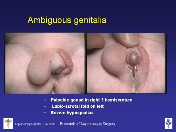 Ambiguous Genitalia | The Cut Above | Pinterest | Robotic ...