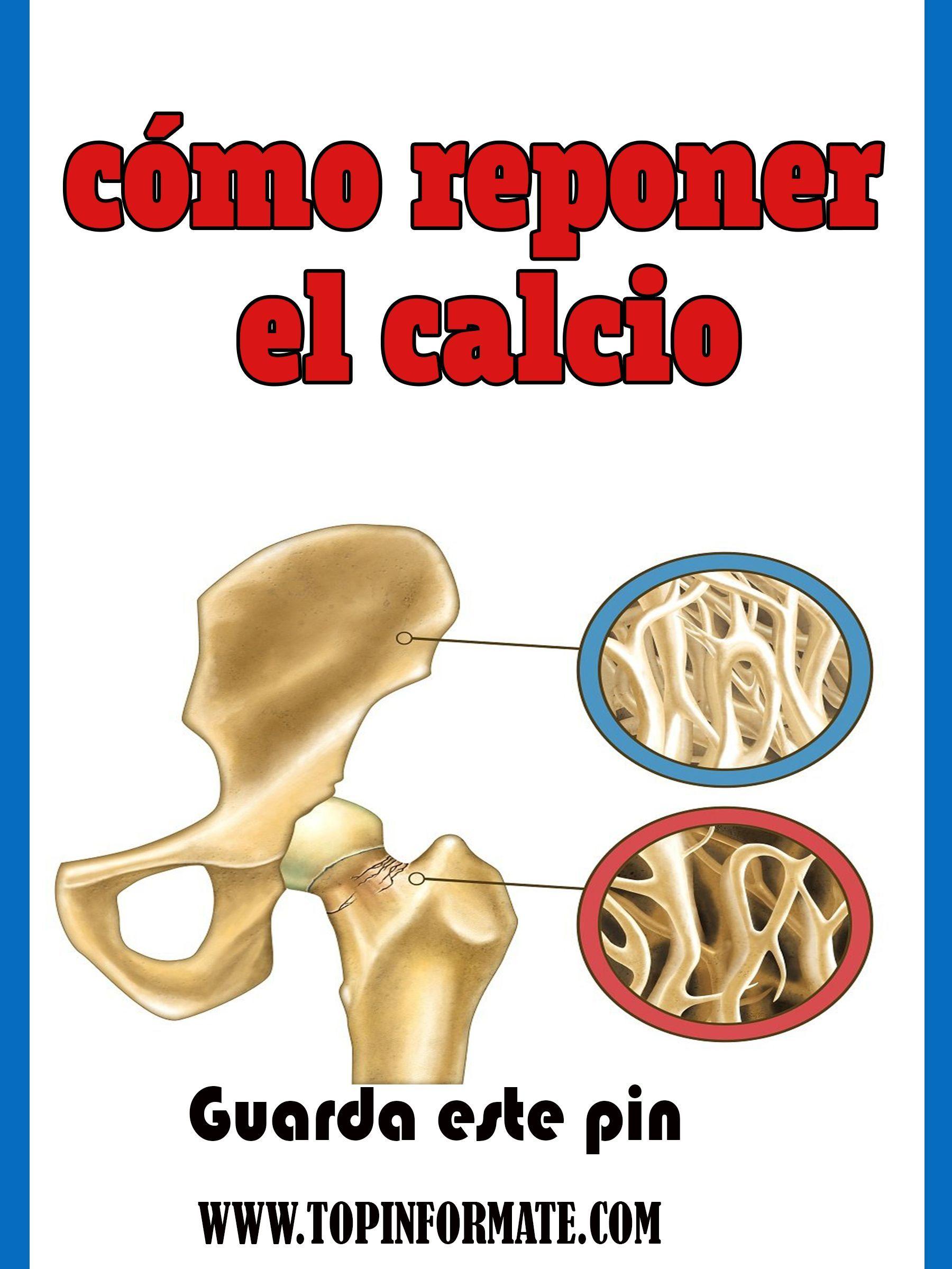 32++ Imagenes de huesos con osteoporosis viral