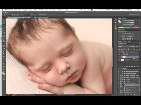 PhotoShop - Editing and retouching acne, redness, and skin flakes in newborn photographs.