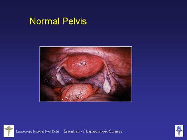 Laparoscopic Pelvic Anatomy | Laparoscopic Pictures and Slides ...