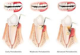 Gum Disease Dentist  #dentalfacts