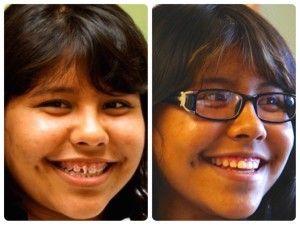 Julissa Before Amp After Braces Gap Band Alternative For
