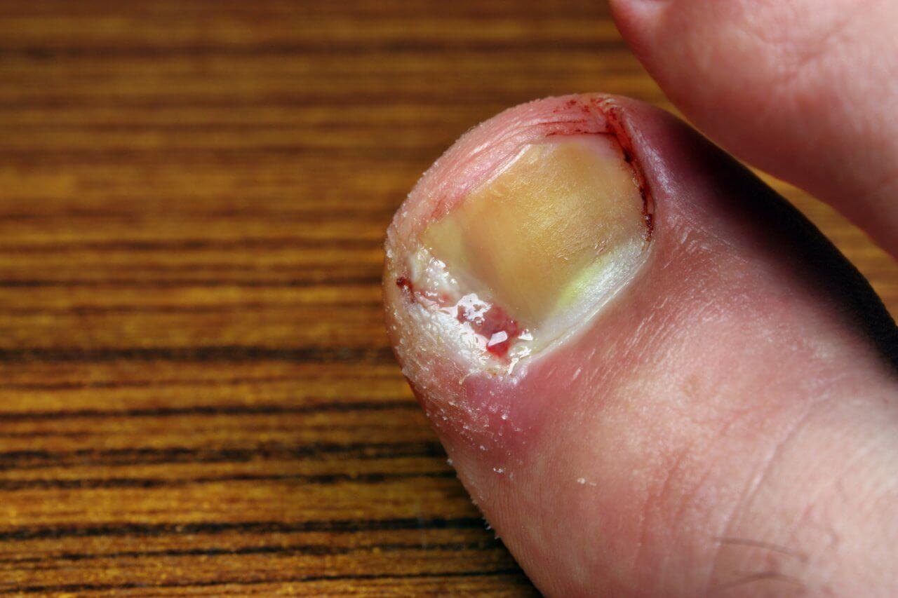 como curar un uñero del dedo dela mano