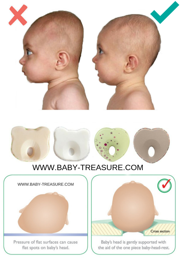 Flat Head Syndrome Baby Pillow Flat Head Syndrome Baby Pillows Flat Head Baby