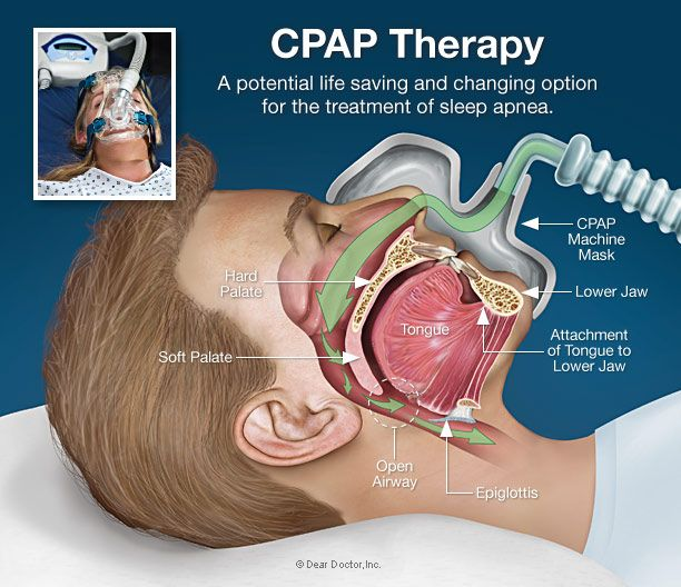The primary goal of CPAP is to decrease the work of breathing so the ...