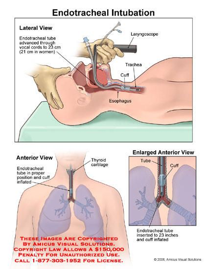 What Are The Risks Of Having An Endotracheal Tube Inserted