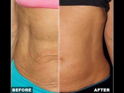 How To Tighten Up Loose Skin After Weight Loss Health Beauty