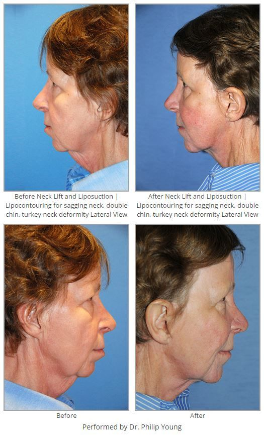 Before & After Neck Lift and Liposuction | Lipocontouring for ...