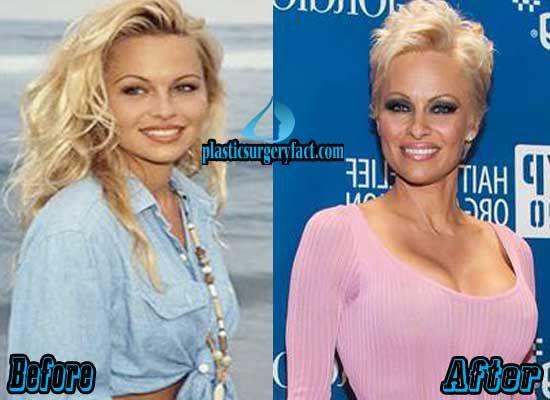 Pamela Anderson Before Boob Job