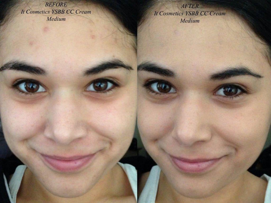 IT cosmetics CC Cream Before After - CLICK THRU FOR FULL REVIEW ...