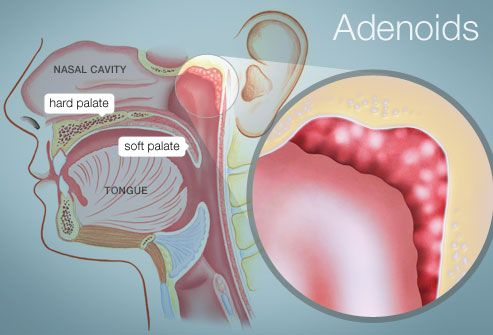 Adenoids/Pharyngeal Tonsils--lymphatic tissue mass above the border ...