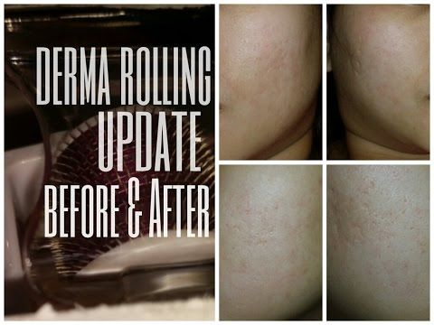 How to Use Derma Roller Properly & Improve Result by 500%