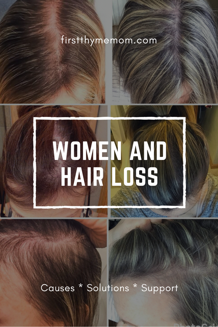 Women And Hair Loss: Causes, Solutions, and Support # ...
