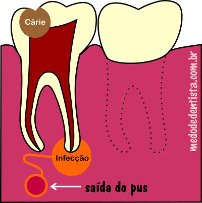 A bolinha no pé do dente...
