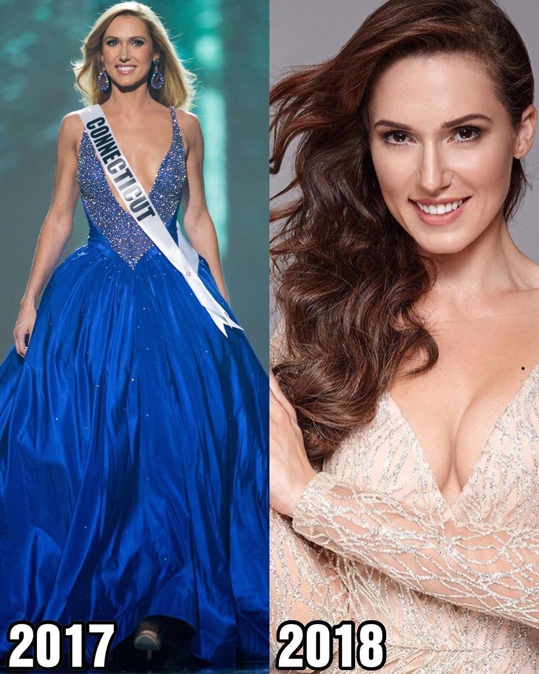 By Photo Congress || Miss Ukraine 2018 Instagram