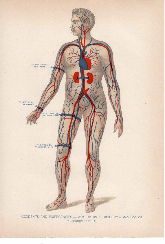 1901 human anatomy original antique print of tourniquet placement ...
