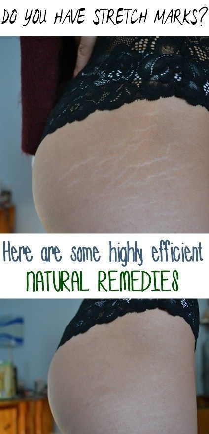 How to Get Rid of Stretch Marks Naturally | Stretch marks ...