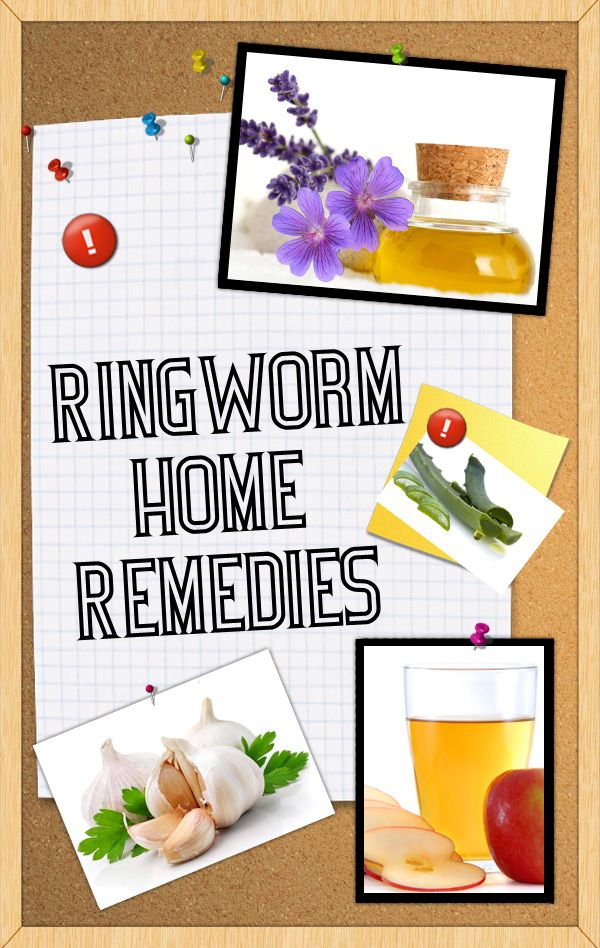 Home Remedies for Ringworm, swab ringworm 3 Xs/day with a Qtip soaked in CLEAR/Decolorized IODINE. Takes 3-5 days of treatment w/iodine to clear most cases. Or, try some of these other suggestions. #homeremediesforringworm