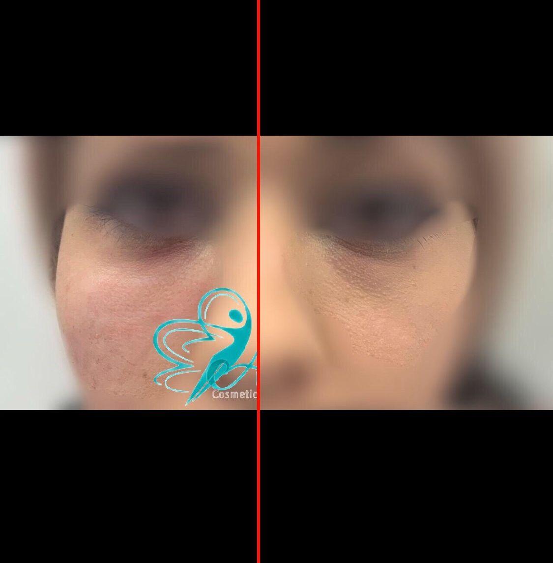 #undereyefiller and #laser in 2020 | Under eye fillers ...