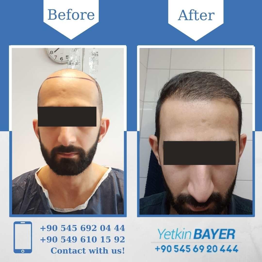 Osl Method Hair Transplant Before After 11 Months Later 4000 Grafts Hair Transplant Hair Transplant Results Best Hair Transplant