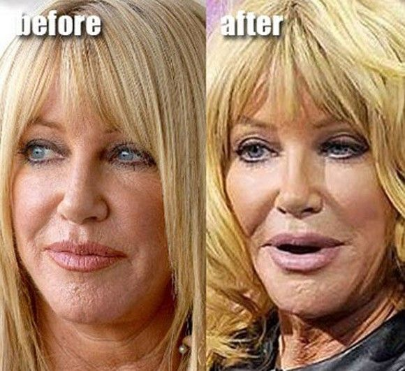 Suzanne Somers Plastic Surgery Gone Wrong Jpg Uh Is