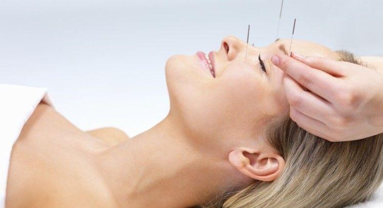 Milenaria y actual, 6 beneficios de la acupuntura #YaPonteBella